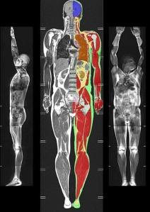 MRI-scan-415x587.jpg